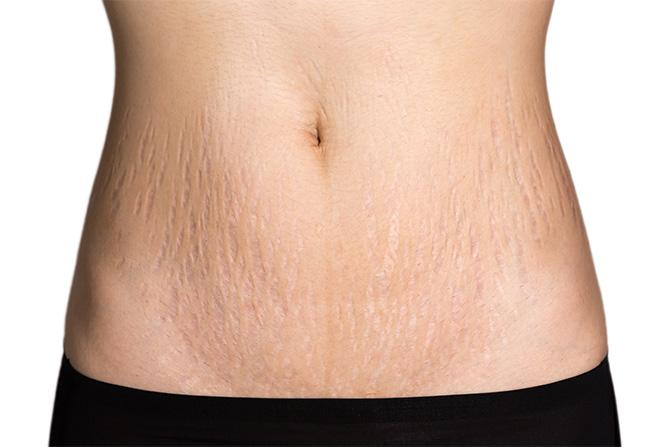 stretch marks after pregnancy