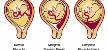placenta pervia