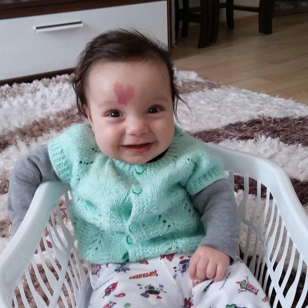 baby with heart birthmark